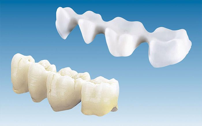 Dental Crowns and Dental Bridges Lebanon