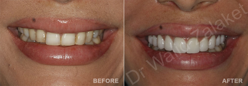 veneers makeover in Beirut