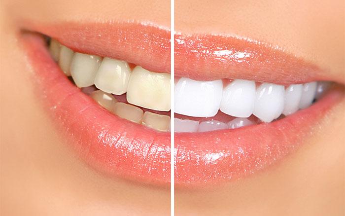 teeth whitening service clinic