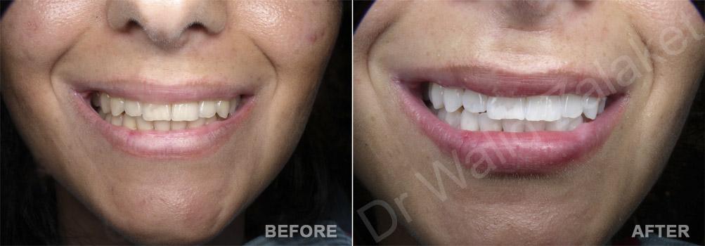 tooth whitening Beirut