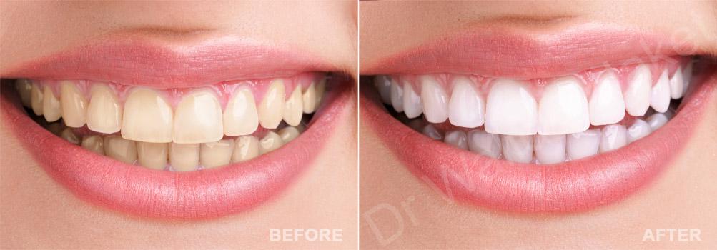 tooth whitening Lebanon